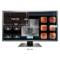 EIZO RadiForce MX315W
