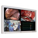 "FSN 55"" 4K Surgical display"