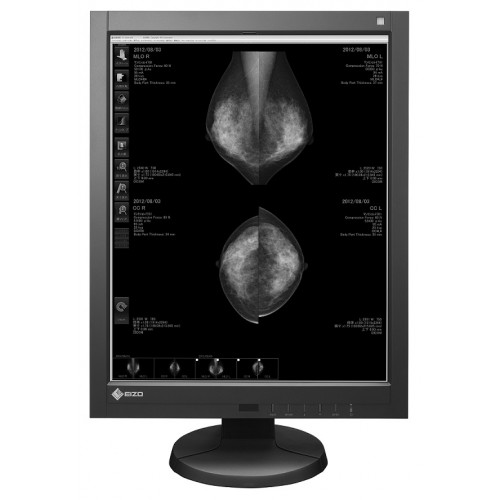 EIZO RadiForce GX540 - 5MP